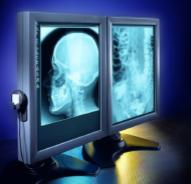 VII Curso sobre avances en Radiología