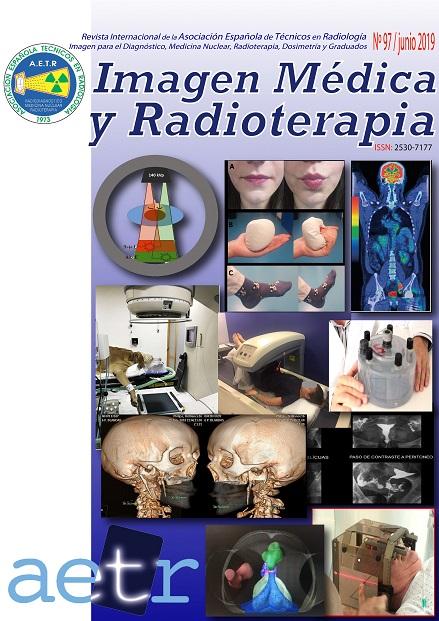 """REVISTA """"IMAGEN MÉDICA Y RADIOTERAPIA"""" Nº 97 – JUNIO 2019"""
